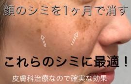 顔のシミ,消す,皮膚科