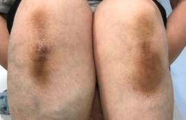 膝の黒ずみ