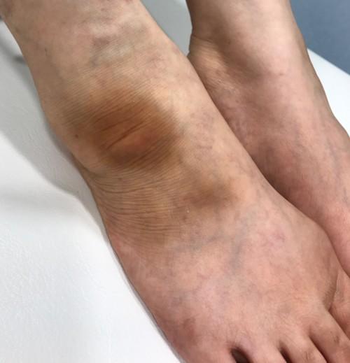 足の黒ずみ