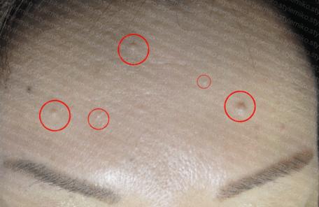 稗粒腫 画像