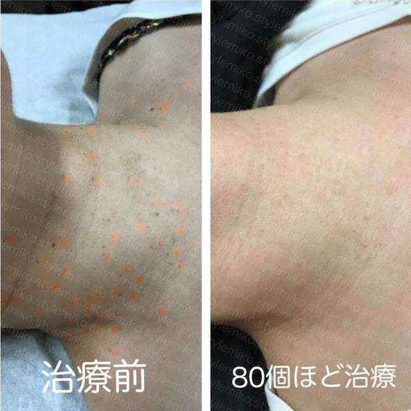 首イボ 東京 皮膚科