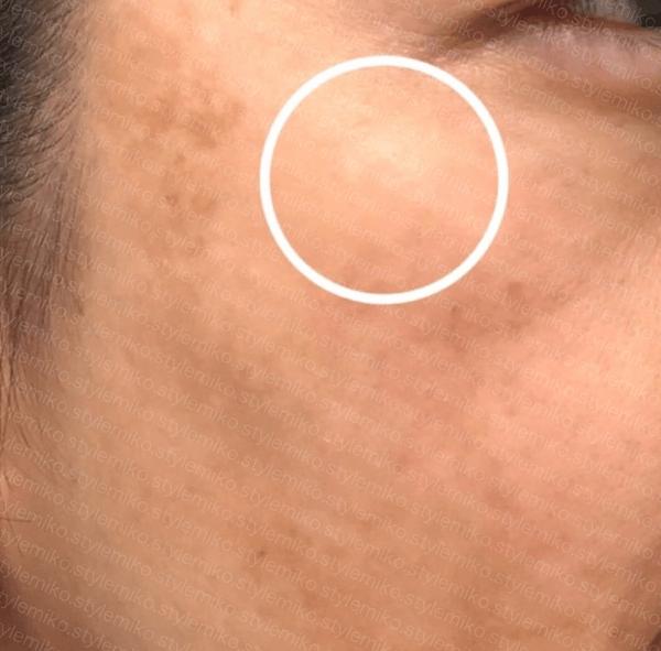 トーニング 肝斑