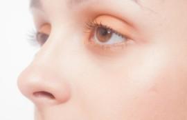毛穴 肝斑