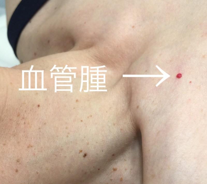 赤いぽつぽつのイボ(血管腫)はレーザー治療で簡単にさよなら