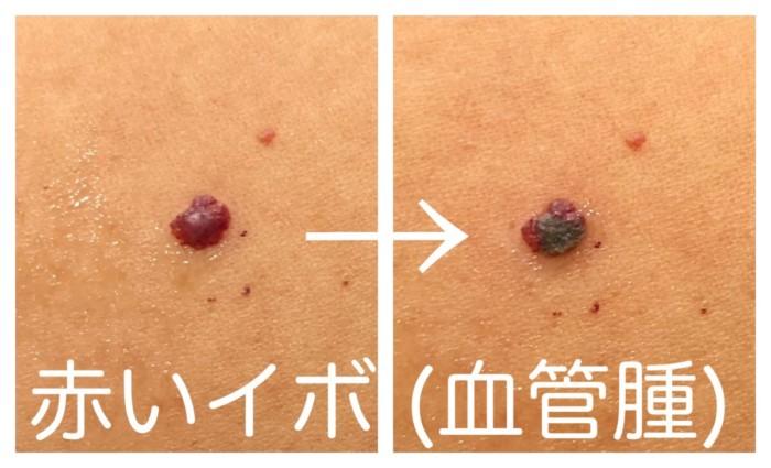 赤いぽつぽつ 血管腫 治療