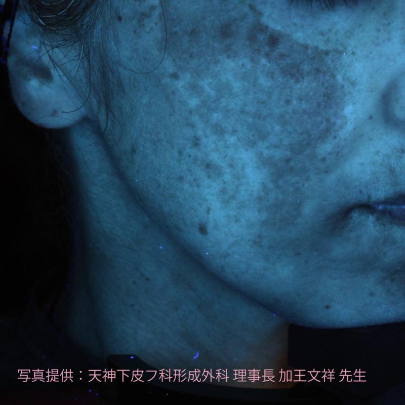 12月にシミ診断の機器を導入予定(秋田)