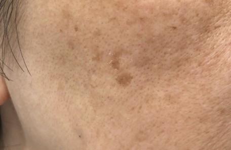 シミ治療 皮膚科
