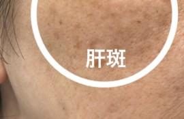 肝斑 消す