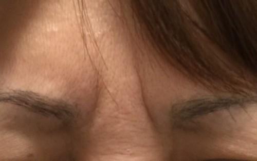 眉間のしわ