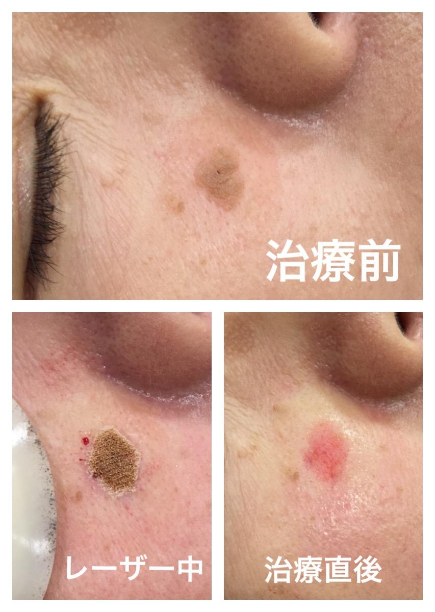 顔イボレーザー治療