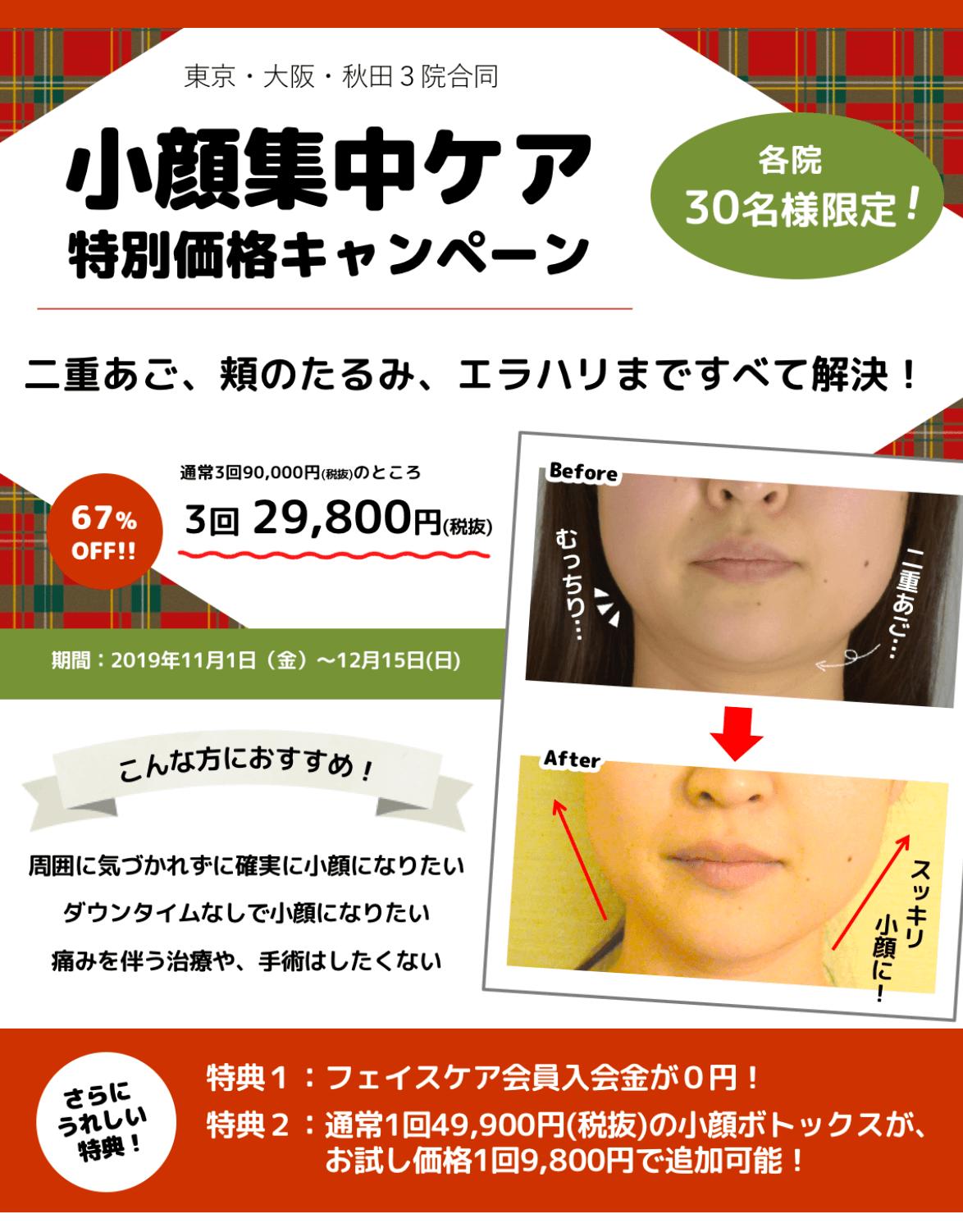 小顔キャンペーン