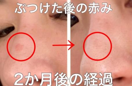 赤み 改善 化粧品