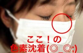 マスク シミ 肝斑